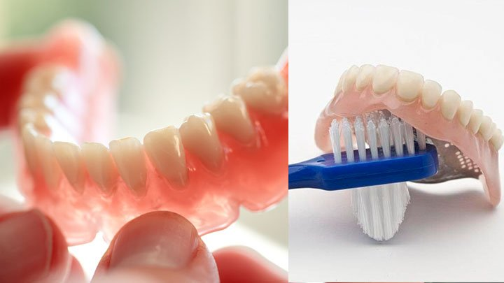 How to Clean Upper and Lower Dentures?